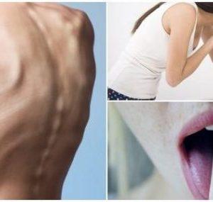 ¿Qué es la bulimia?